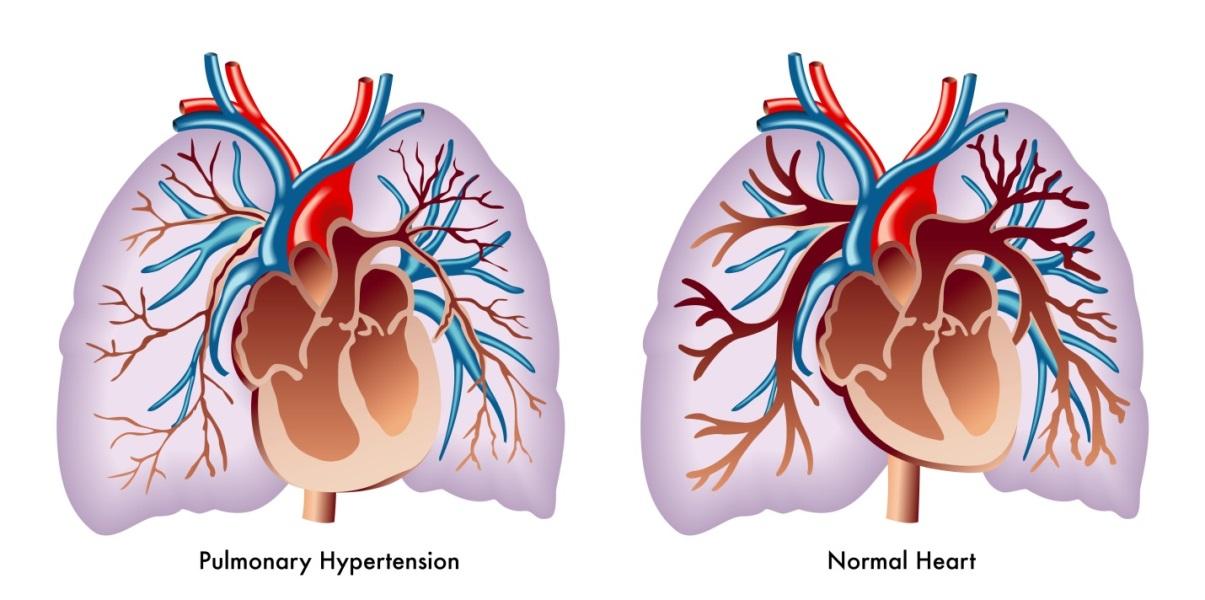 lung and heart health – haley ann